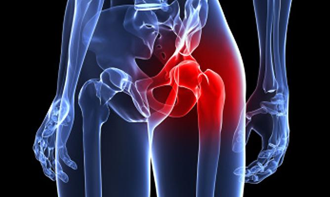 dolor en la cadera izquierda y la pelvis